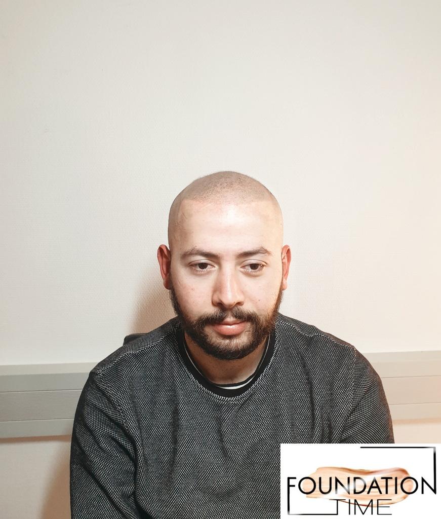 Haarpigmentierung, Scalppigmentierung